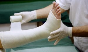 artroza gležnja-zlom kosti